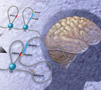 Signs of Brain MTHFR